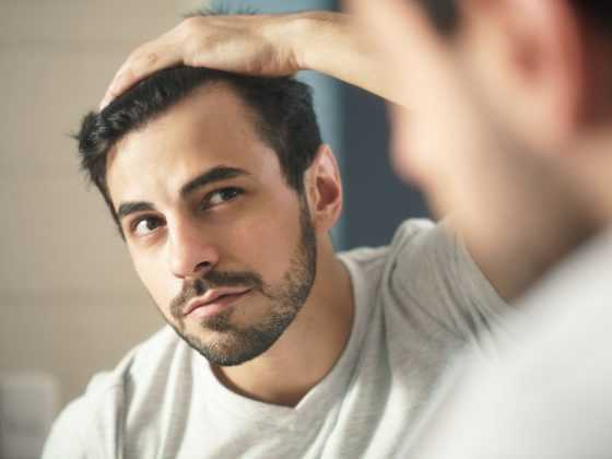Know more about Minoxidil Shedding