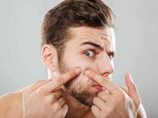 4 Easy Ways To Get Rid Of Pimples On Face Naturally