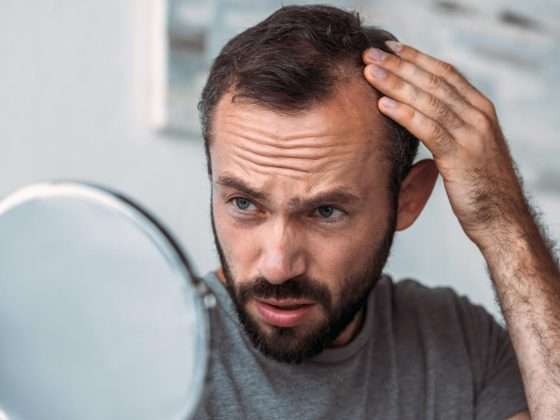 hair loss due to thyroid